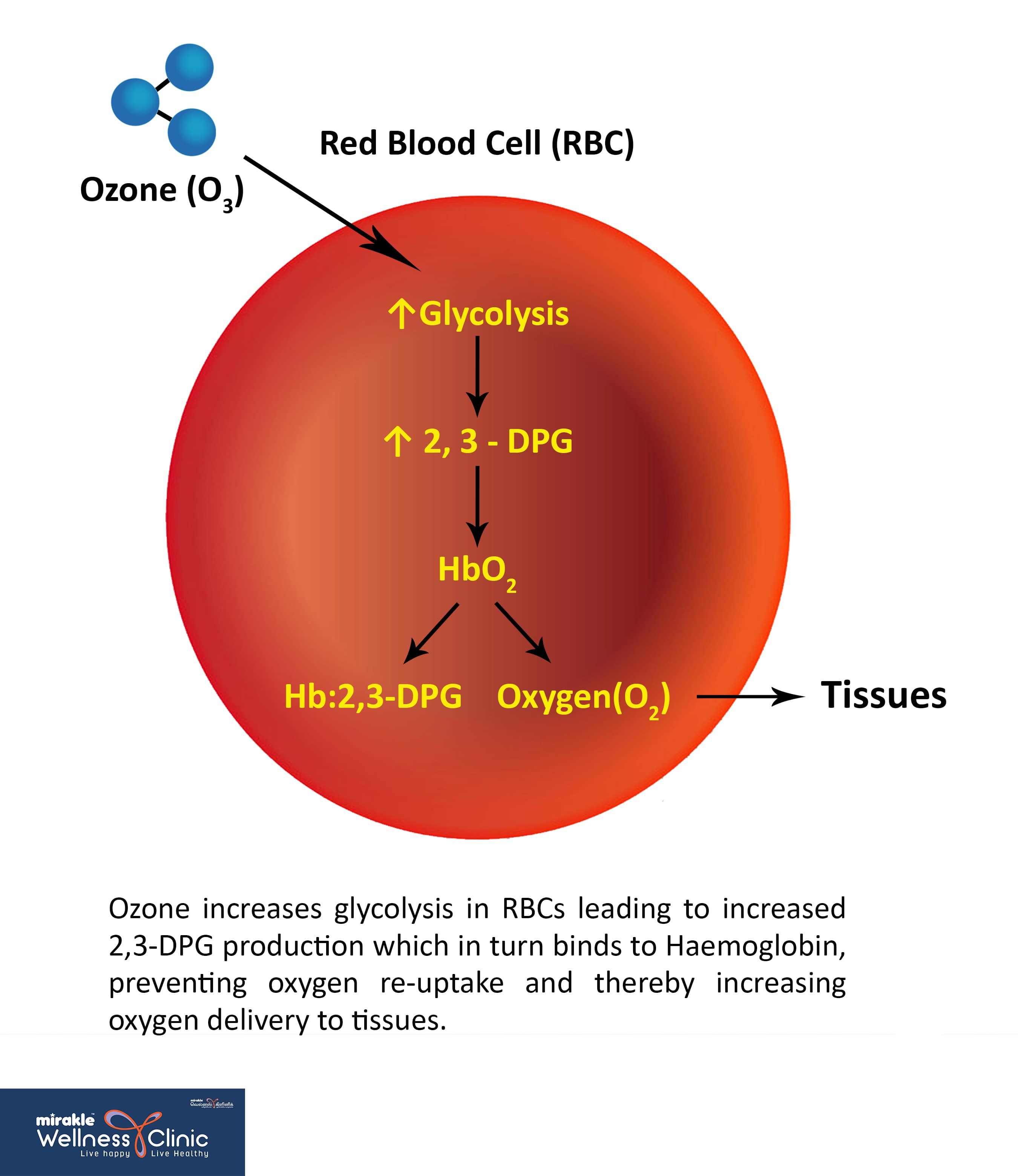 How Ozone Therapy in Heart Works